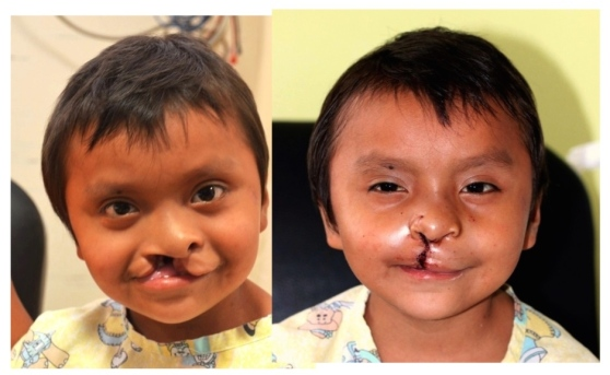 Cesar before and 1 day after